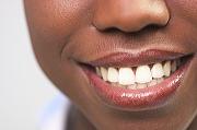 人種による歯の色の違い